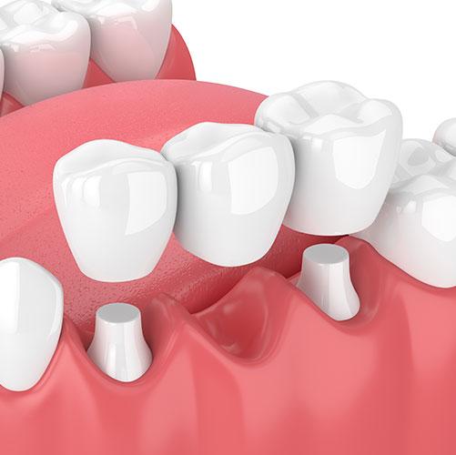 traditional dental bridge
